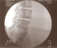 Fluoroscopic Image 2