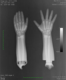 PBU-70 Forearm & Hands. Left Hand Relaxed. Right Hand Flat X-Ray
