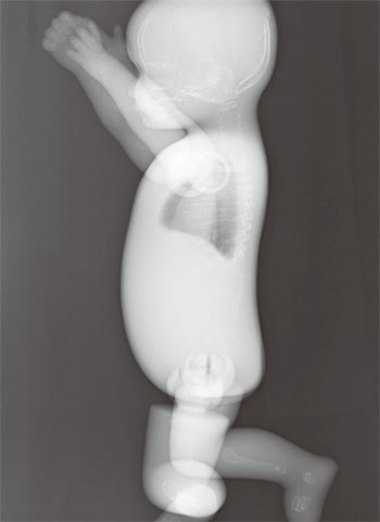 Whole Body Newborn Baby Phantom - X-Ray Image 2