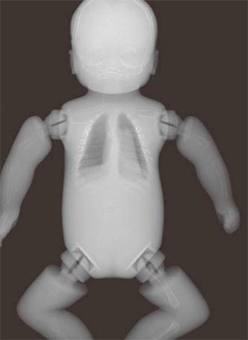 Whole Body Newborn Baby Phantom - X-Ray Image 3